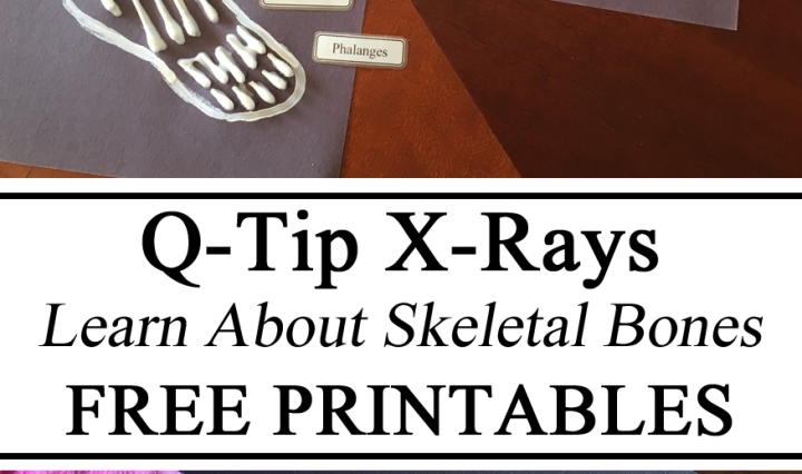 Q-Tips, X-Ray, Skeletal Bones, My Body Unit, Anatomy & Physiology, Hands on Learning, Biology, Educational Activity, Kids Activity, Learning, Montessori, Homeschool, Homeschooling, Waldorf, Preschool, Totschool, Kindergarten, DIY